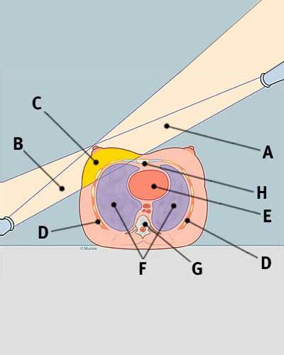 radiation_treatment_cross_section_tcm8-329387
